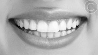 Cosmetic Dentisry